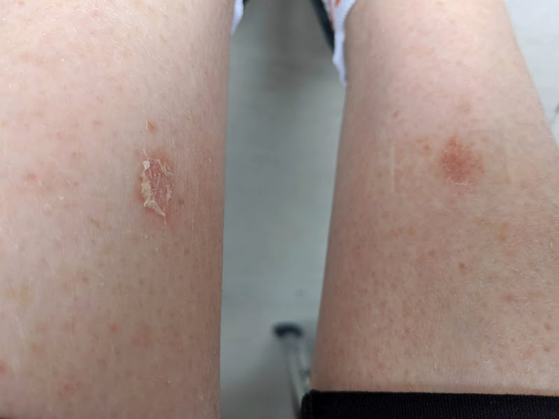 manuka honey and wound healing