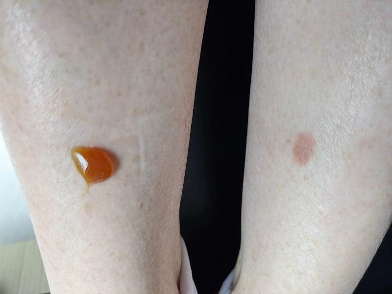 manuka honey healing